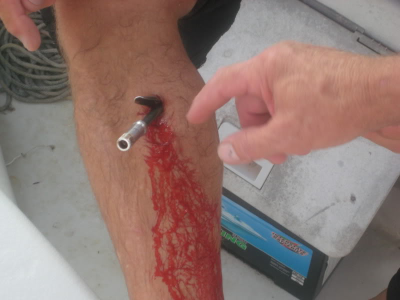 Ouch spearfishing gone wrong hunting for Fishing hook accidents